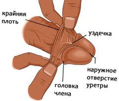 Se é possível que o membro sem intervenção cirúrgica aumente